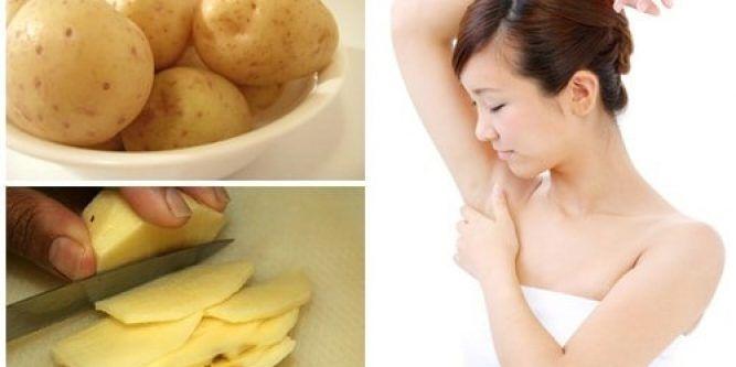 Cách trị thâm nách sau sinh bằng khoai tây