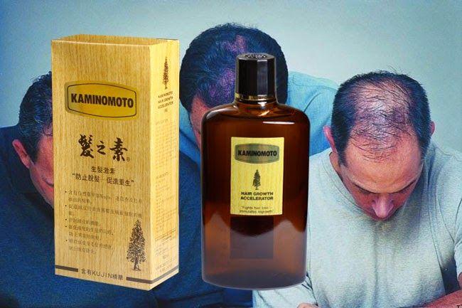 Review – Thuốc mọc tóc kaminomoto Nhật bản